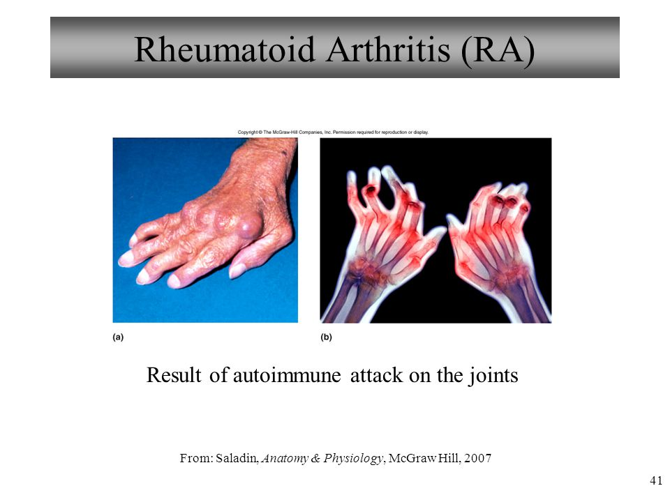 41 Rheumatoid Arthritis (RA) Result of autoimmune attack on the joints From: Saladin, Anatomy & Physiology, McGraw Hill, 2007