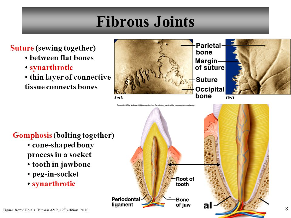 8 Fibrous Joints Suture (sewing together) between flat bones synarthrotic thin layer of connective tissue connects bones Gomphosis (bolting together)