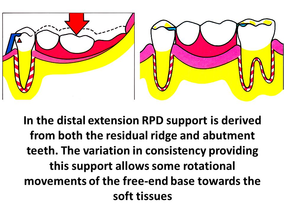 In the distal extension RPD support is derived from both the residual ridge and abutment teeth. The variation in consistency providing this support al