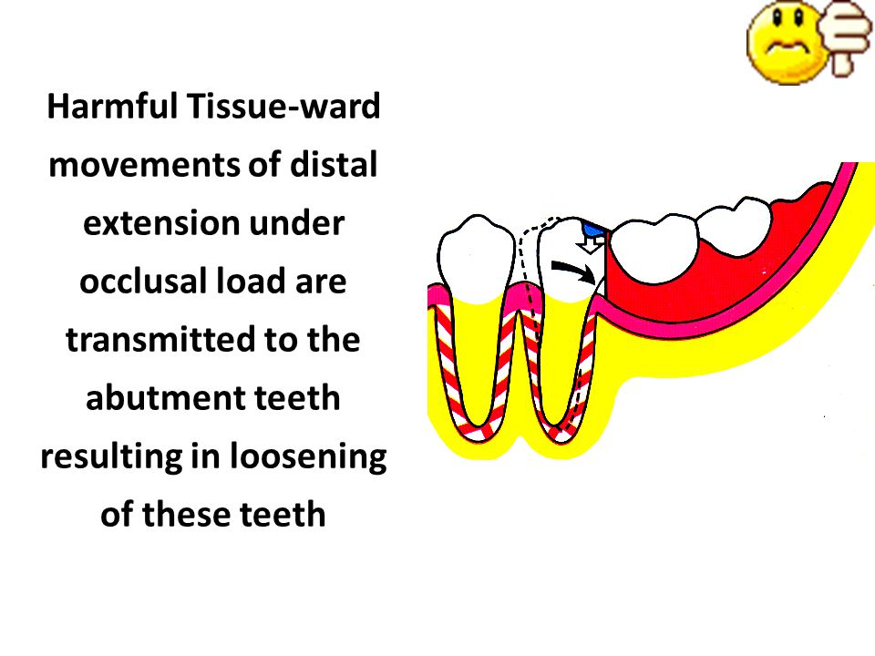 Harmful Tissue-ward movements of distal extension under occlusal load are transmitted to the abutment teeth resulting in loosening of these teeth