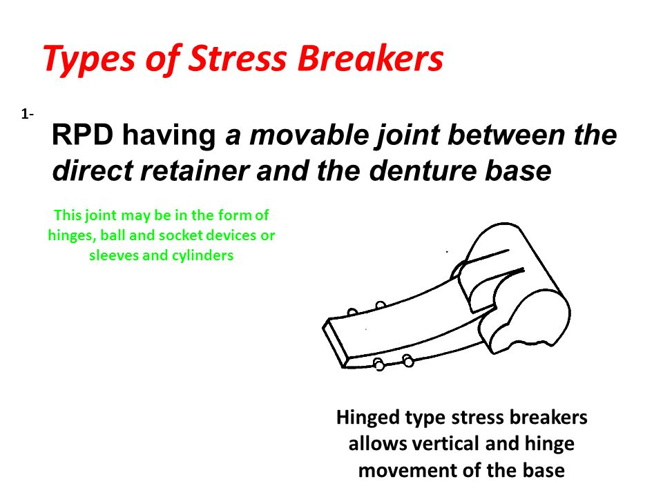 Types of Stress Breakers RPD having a movable joint between the direct retainer and the denture base This joint may be in the form of hinges, ball and