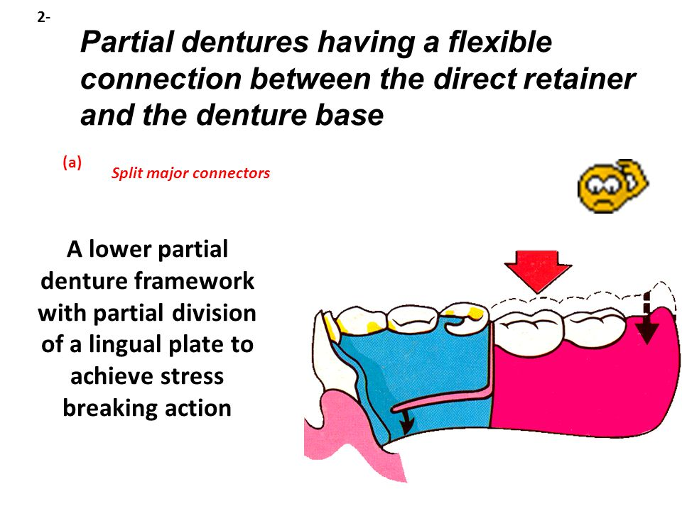 Split major connectors Partial dentures having a flexible connection between the direct retainer and the denture base 2- (a) A lower partial denture framework with partial division of a lingual plate to achieve stress breaking action
