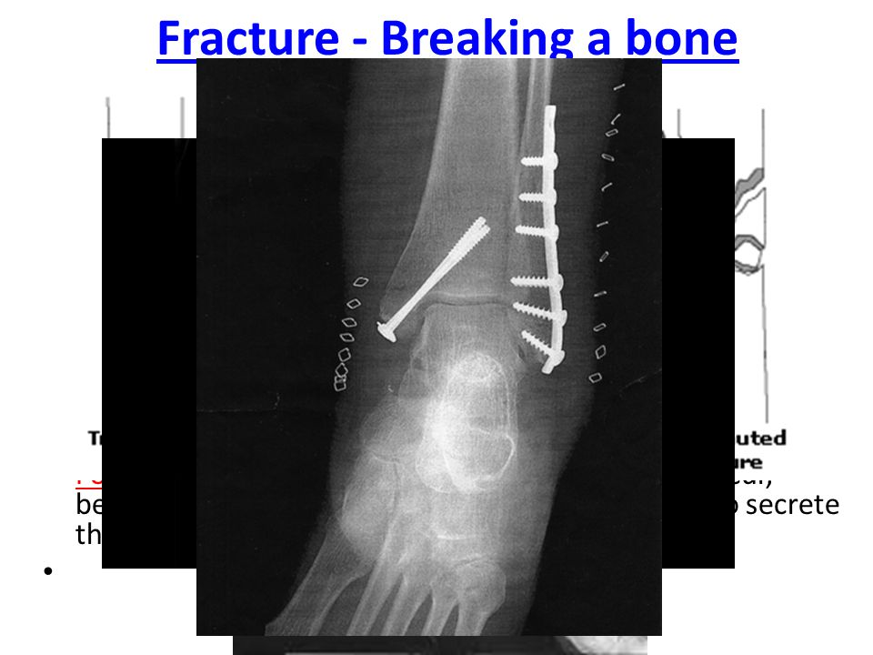 Ossification -Cartilage is replaced by bone during the process of bone formation Osteoblasts create bone.