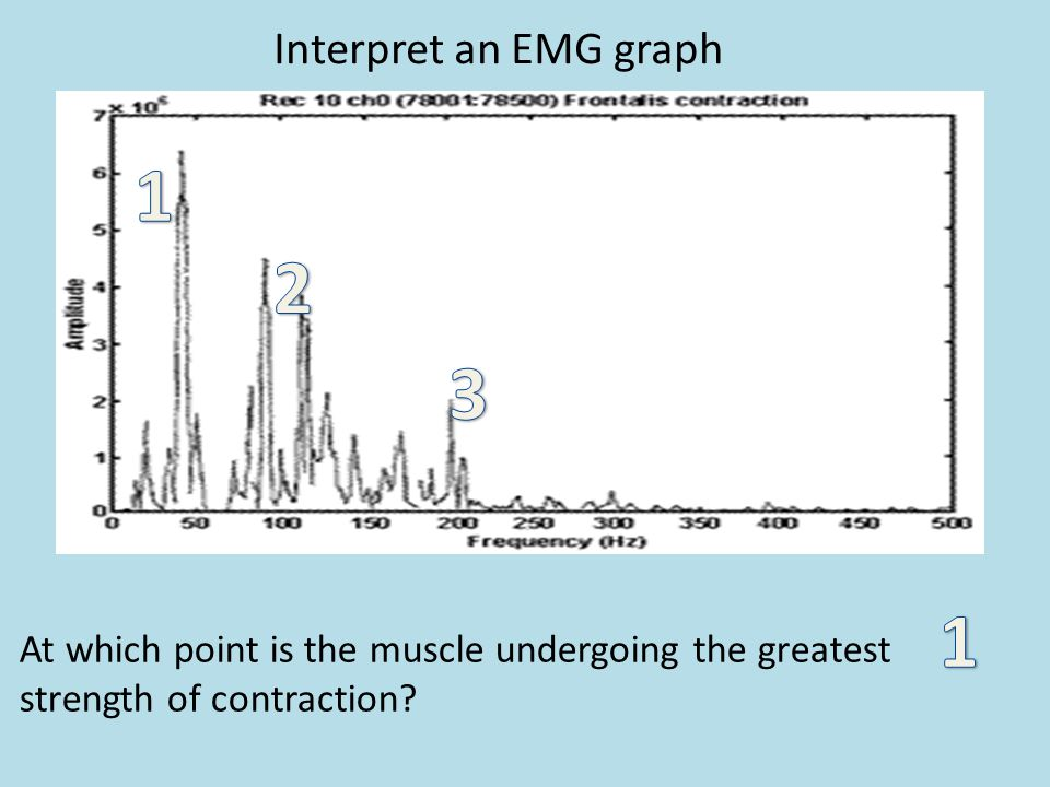 Interpret an EMG graph At which point is the muscle undergoing the greatest strength of contraction?