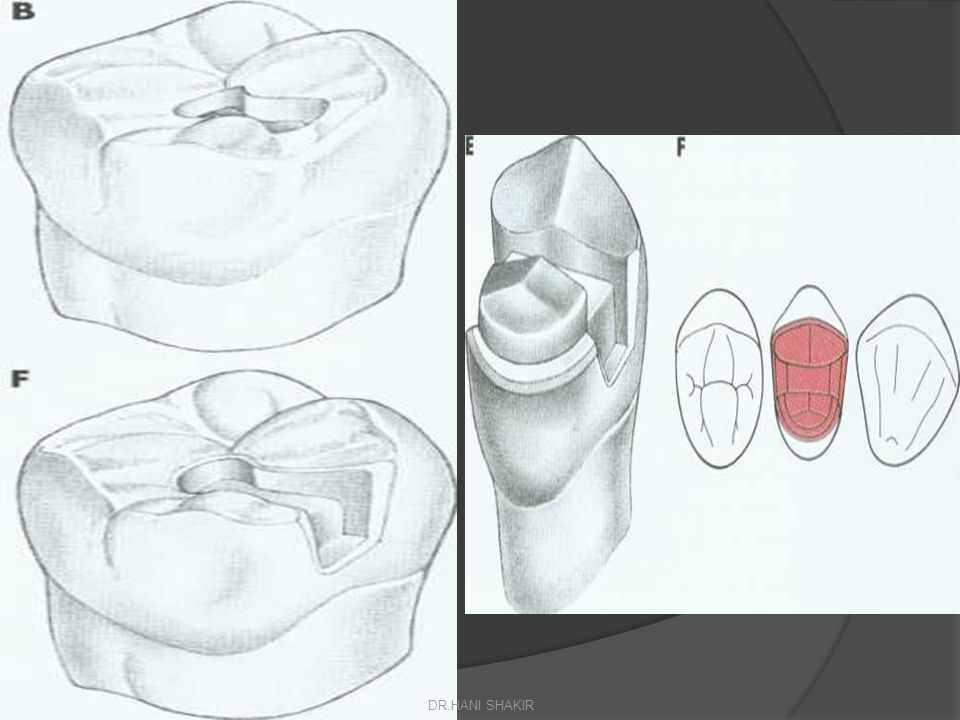 Fixed/movable bridge Indications  Where abutment teeth are tilted or rotated in relation to each other  The construction of large units of bridgework Procedure  Each abutment tooth can be prepared independently although special consideration should be given to the placement of the movable joint.