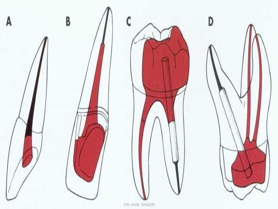 Fixed/movable bridge Advantages  Divergent abutments can be used  more conservative of tooth structure.