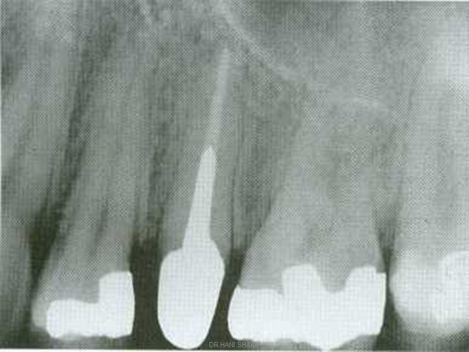Fixed/fixed bridge  definition A prosthesis where the artificial tooth or teeth is supported rigidly on either side by one or more abutment teeth ( Rigid connector at both end of the pontic.) ( Rigid connector at both end of the pontic.) DR.HANI SHAKIR
