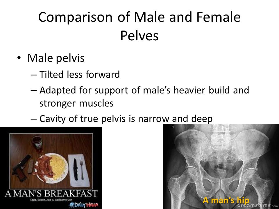 Comparison of Male and Female Pelves Male pelvis – Tilted less forward – Adapted for support of male's heavier build and stronger muscles – Cavity of