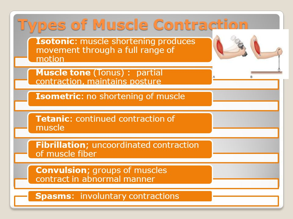 Types of Muscle Contraction Isotonic: muscle shortening produces movement through a full range of motion Muscle tone (Tonus) : partial contraction, maintains posture Isometric: no shortening of muscle Tetanic: continued contraction of muscle Fibrillation; uncoordinated contraction of muscle fiber Convulsion; groups of muscles contract in abnormal manner Spasms: involuntary contractions