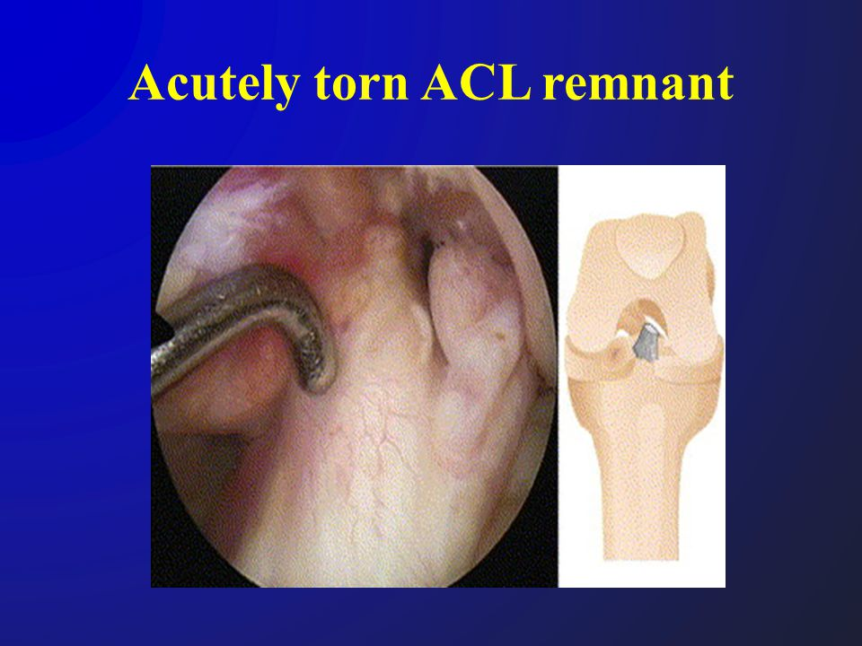 Surgical technique Developed to maximize the preservation of the tibial remnant Semitendinous & gracilis tendon harvest distally attached Femoral & tibial tunnels created Tibial tunnel at the ACL remnant Preserve the tibial remnant