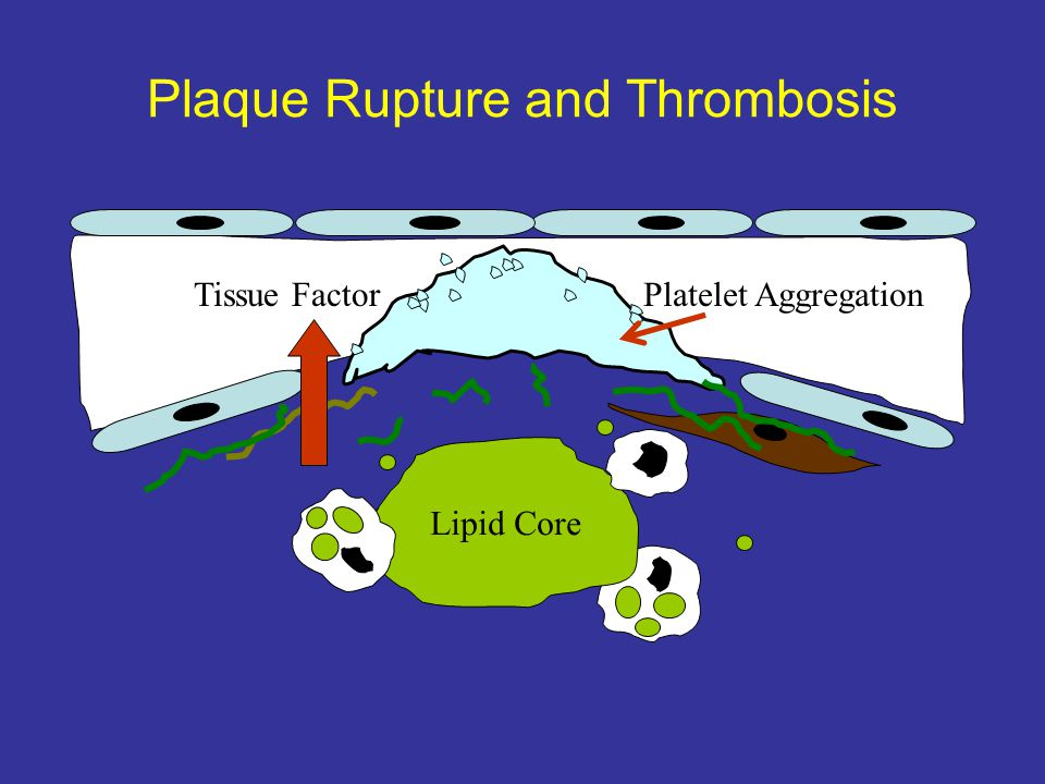 Plaque Rupture and Thrombosis Lipid Core Tissue FactorPlatelet Aggregation