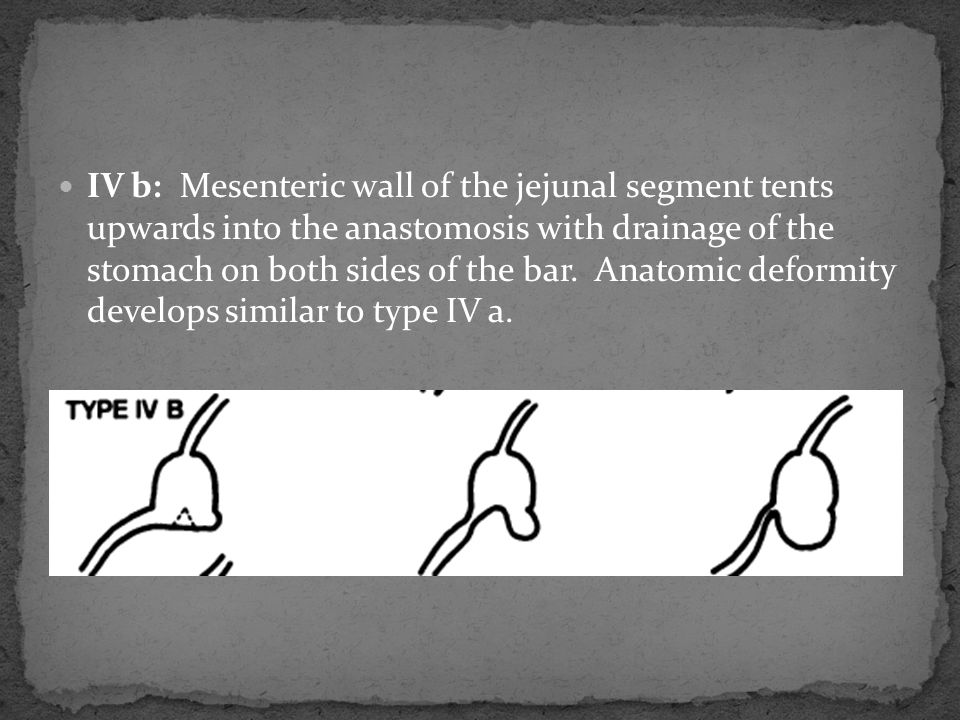 IV b: Mesenteric wall of the jejunal segment tents upwards into the anastomosis with drainage of the stomach on both sides of the bar. Anatomic deform