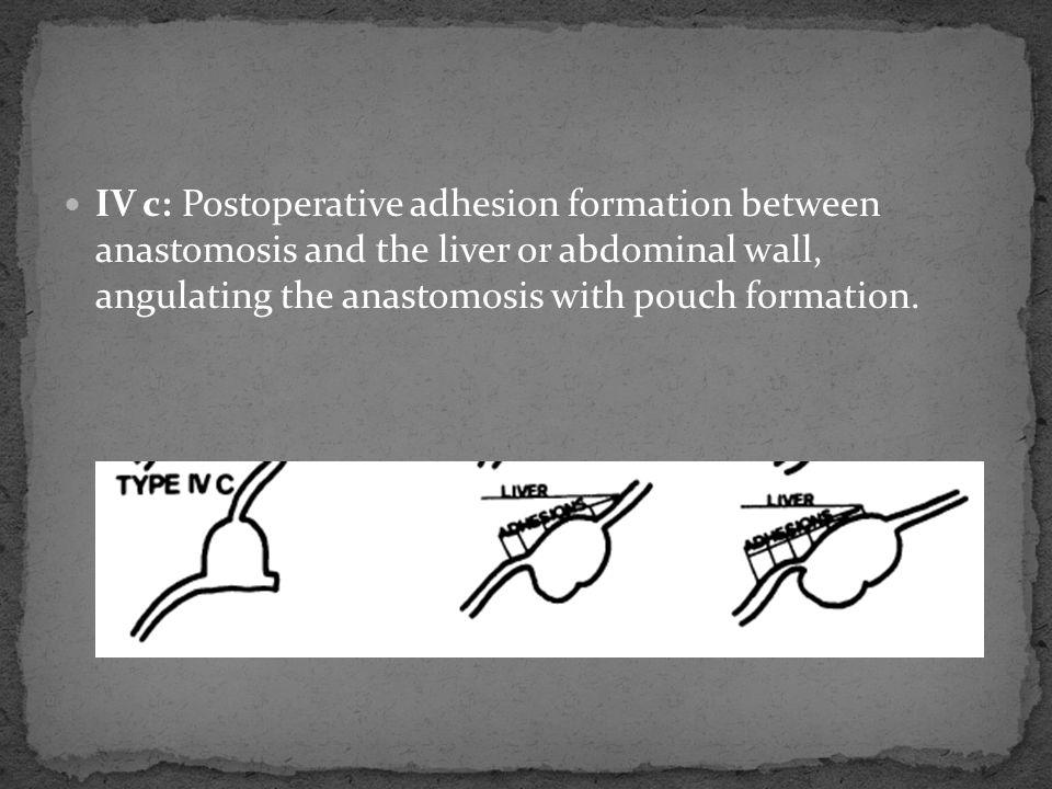 Gastric outlet obstruction after Roux-en-Y gastrojejunostomy.