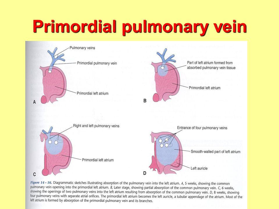Primordial pulmonary vein