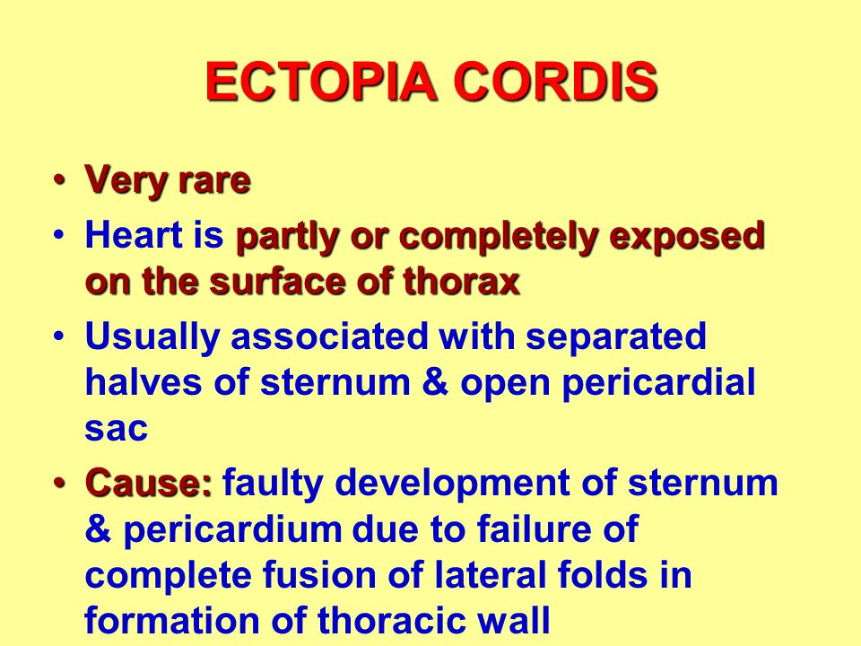 ECTOPIA CORDIS Very rareVery rare partly or completely exposed on the surface of thoraxHeart is partly or completely exposed on the surface of thorax Usually associated with separated halves of sternum & open pericardial sac Cause:Cause: faulty development of sternum & pericardium due to failure of complete fusion of lateral folds in formation of thoracic wall