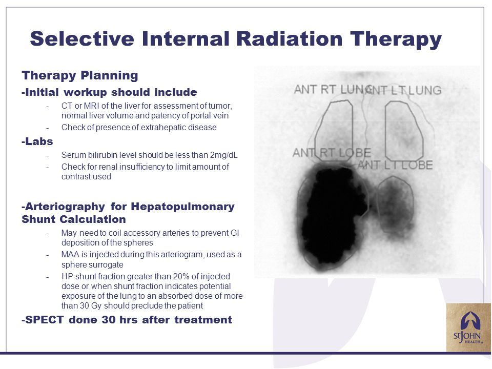 Selective Internal Radiation Therapy Therapy Planning -Initial workup should include -CT or MRI of the liver for assessment of tumor, normal liver volume and patency of portal vein -Check of presence of extrahepatic disease -Labs -Serum bilirubin level should be less than 2mg/dL -Check for renal insufficiency to limit amount of contrast used -Arteriography for Hepatopulmonary Shunt Calculation -May need to coil accessory arteries to prevent GI deposition of the spheres -MAA is injected during this arteriogram, used as a sphere surrogate -HP shunt fraction greater than 20% of injected dose or when shunt fraction indicates potential exposure of the lung to an absorbed dose of more than 30 Gy should preclude the patient -SPECT done 30 hrs after treatment