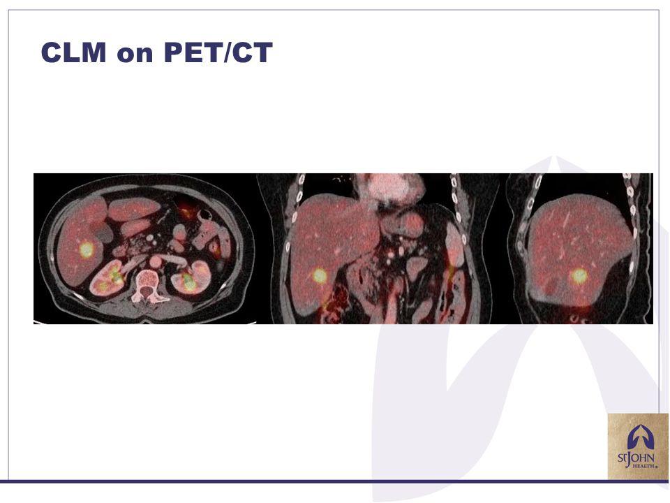 CLM on PET/CT