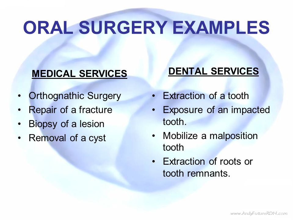 ORAL SURGERY EXAMPLES MEDICAL SERVICES Orthognathic Surgery Repair of a fracture Biopsy of a lesion Removal of a cyst DENTAL SERVICES Extraction of a tooth Exposure of an impacted tooth.