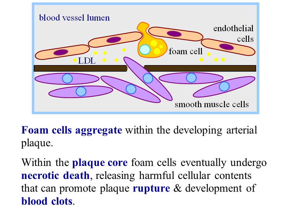 Foam cells aggregate within the developing arterial plaque.