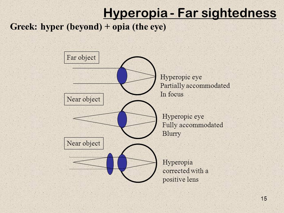 15 Hyperopic eye Partially accommodated In focus Hyperopia corrected with a positive lens Far object Hyperopic eye Fully accommodated Blurry Near object Greek: hyper (beyond) + opia (the eye) Hyperopia - Far sightedness