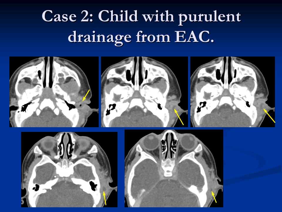 Case 2: Child with purulent drainage from EAC.