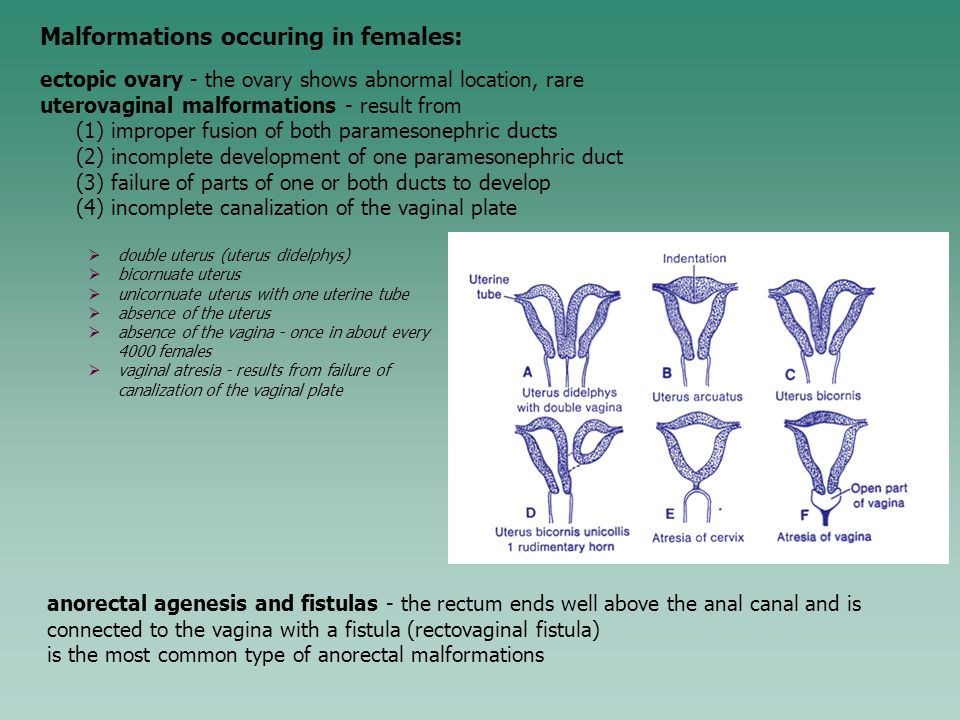 Malformations occuring in females: ectopic ovary - the ovary shows abnormal location, rare uterovaginal malformations - result from (1) improper fusio