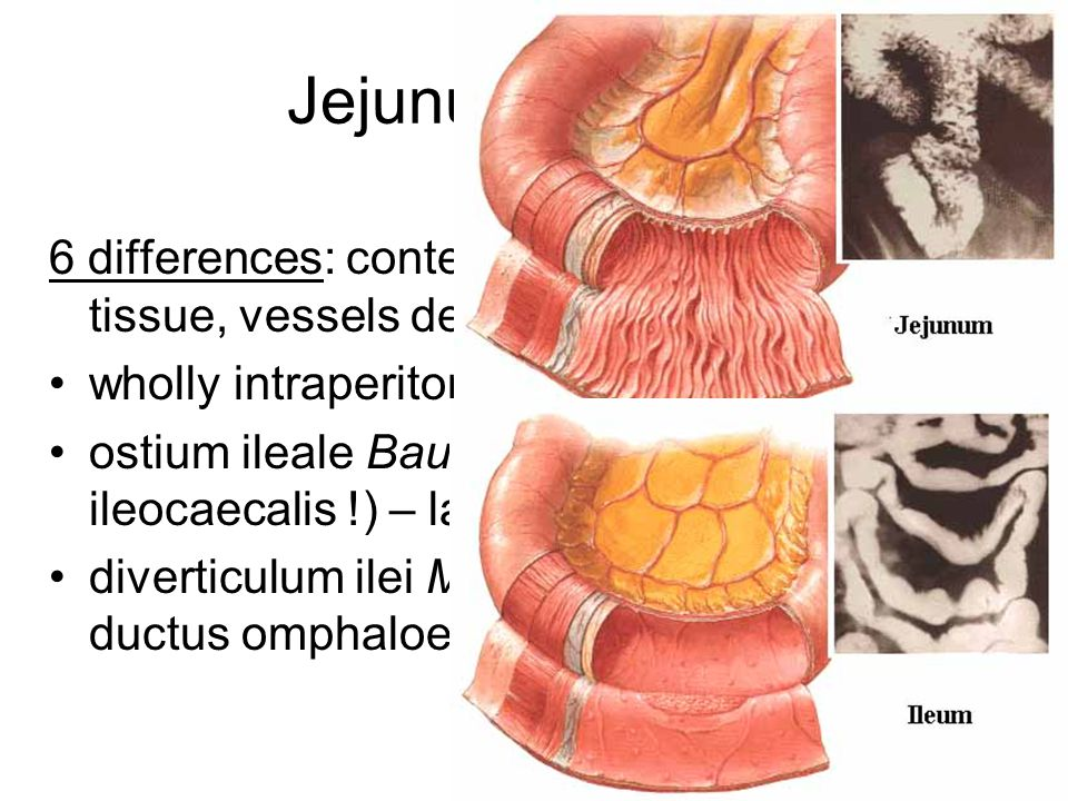 Jejunum et ileum 6 differences: content, width, folds, lymphoid tissue, vessels density and arrangement wholly intraperitoneally, radix mesenterii ost
