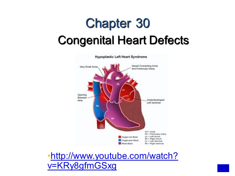Chapter 30 Congenital Heart Defects http://www.youtube.com/watch? v=KRy8gfmGSxghttp://www.youtube.com/watch? v=KRy8gfmGSxg