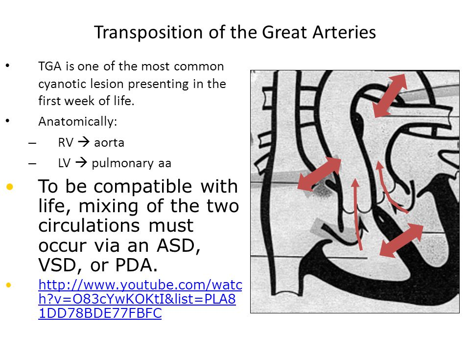 Transposition of the Great Arteries TGA is one of the most common cyanotic lesion presenting in the first week of life. Anatomically: – RV  aorta – L