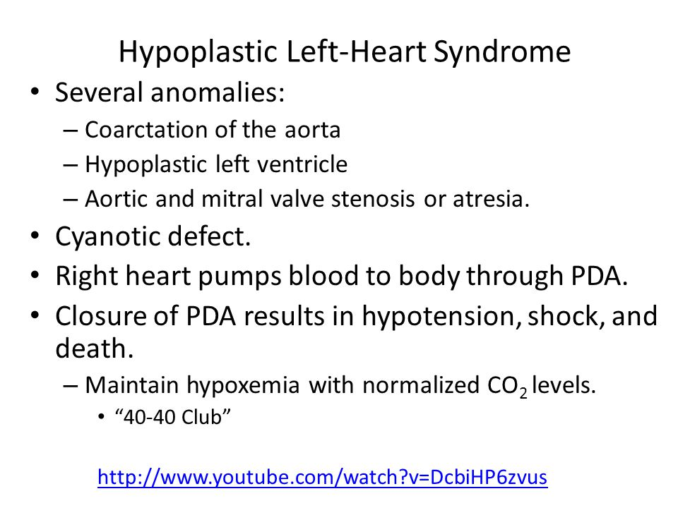 Hypoplastic Left-Heart Syndrome Several anomalies: – Coarctation of the aorta – Hypoplastic left ventricle – Aortic and mitral valve stenosis or atres