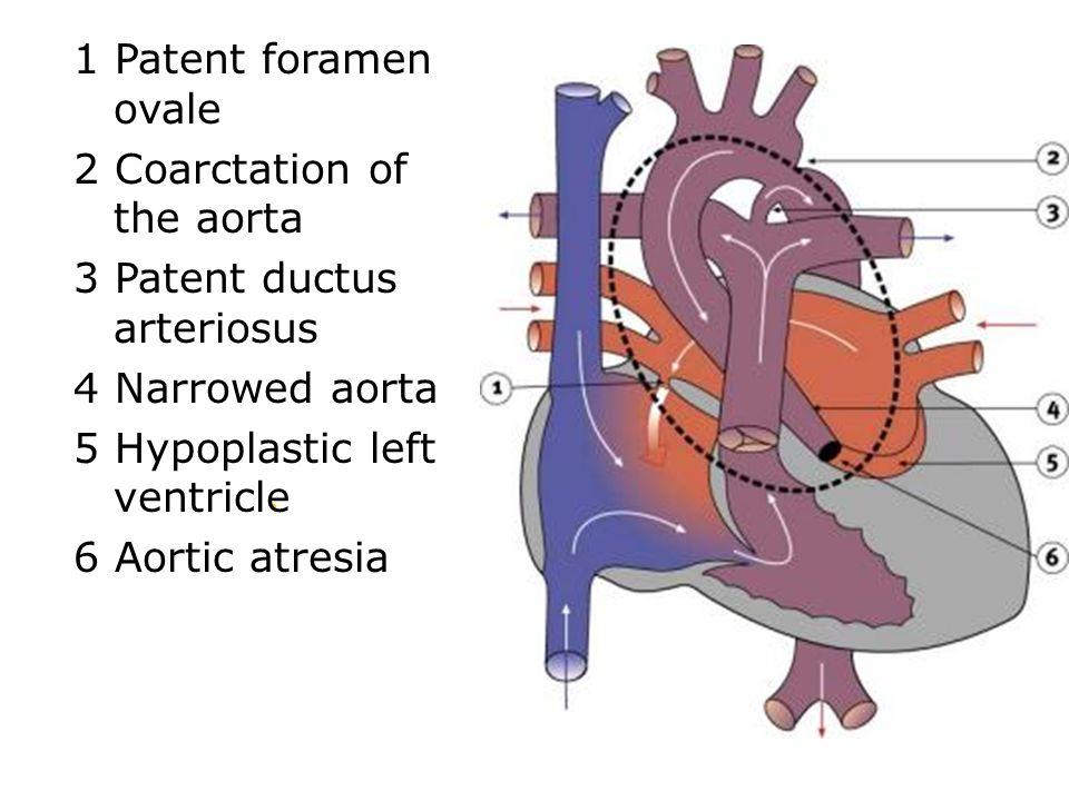 1 Patent foramen ovale 2 Coarctation of the aorta 3 Patent ductus arteriosus 4 Narrowed aorta 5 Hypoplastic left ventricle 6 Aortic atresia