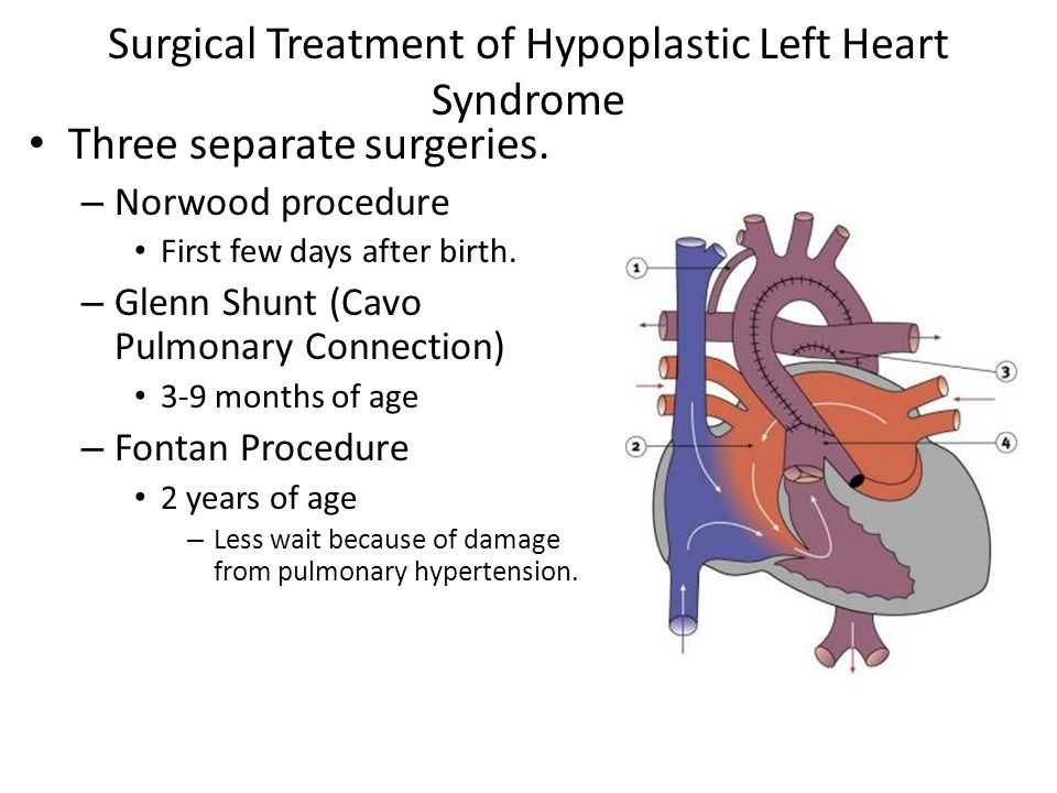 Surgical Treatment of Hypoplastic Left Heart Syndrome Three separate surgeries. – Norwood procedure First few days after birth. – Glenn Shunt (Cavo Pu