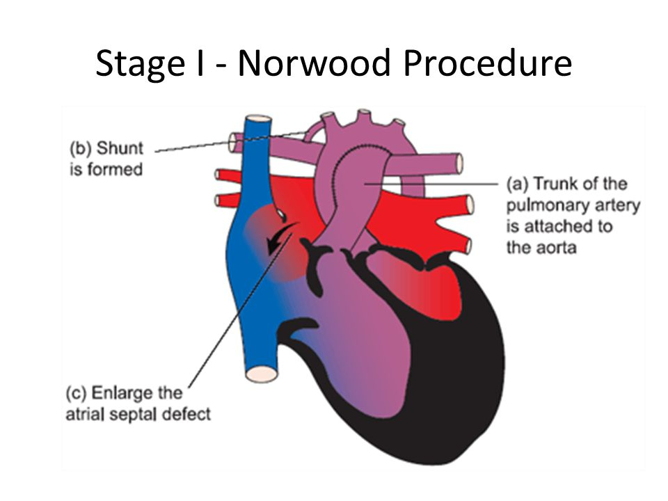 Stage I - Norwood Procedure