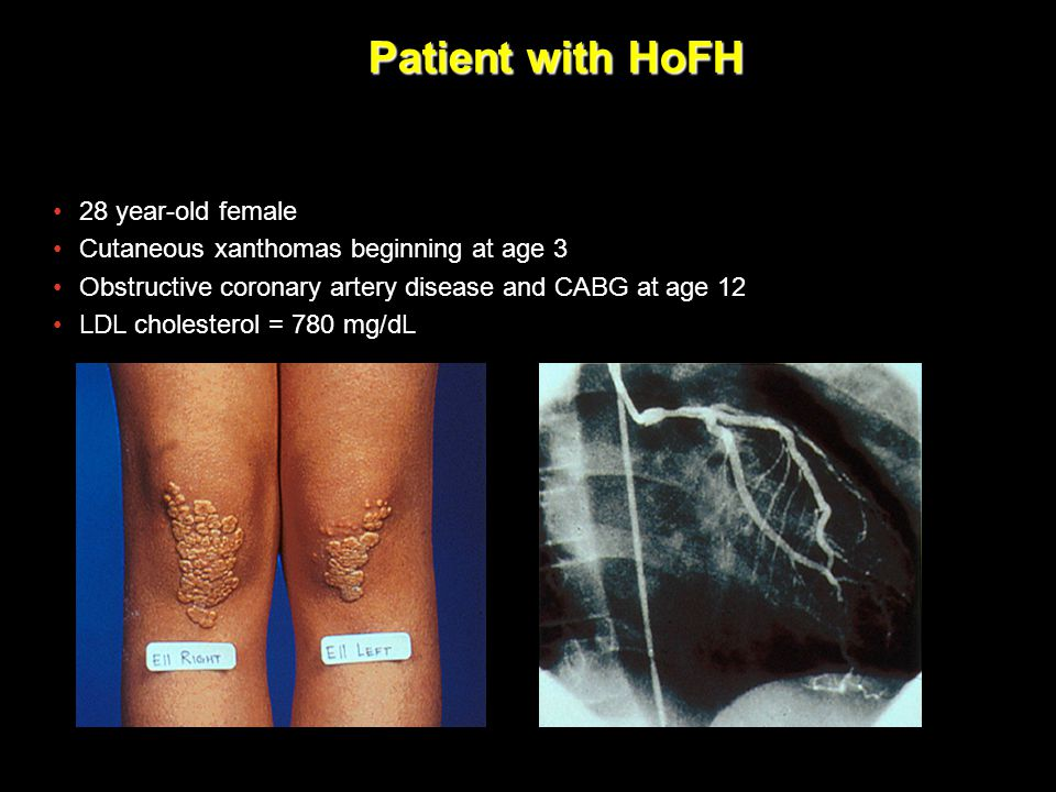 Patient with HoFH 28 year-old female Cutaneous xanthomas beginning at age 3 Obstructive coronary artery disease and CABG at age 12 LDL cholesterol = 7