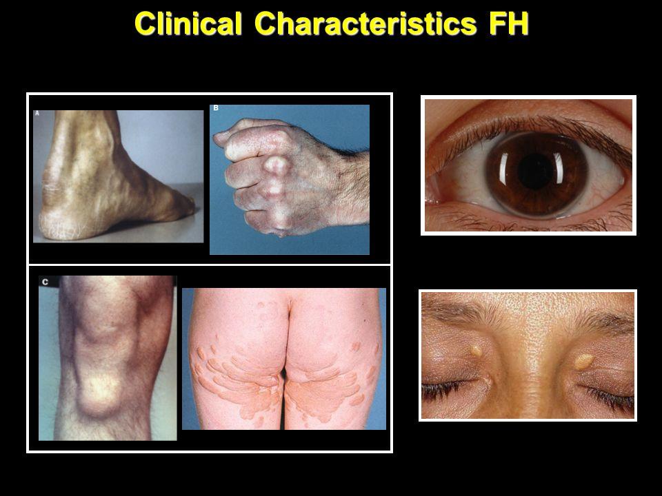 Clinical Characteristics FH Tendinous Xanthomas (any age) Corneal Arcus (<45yo) Xanthelasma (<25yo)