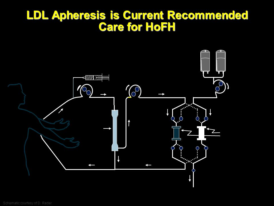 LDL Apheresis is Current Recommended Care for HoFH Schematic courtesy of D. Rader EMDAC Slides FINAL CM-015 ©2013 Aegerion Pharmaceuticals, Inc.