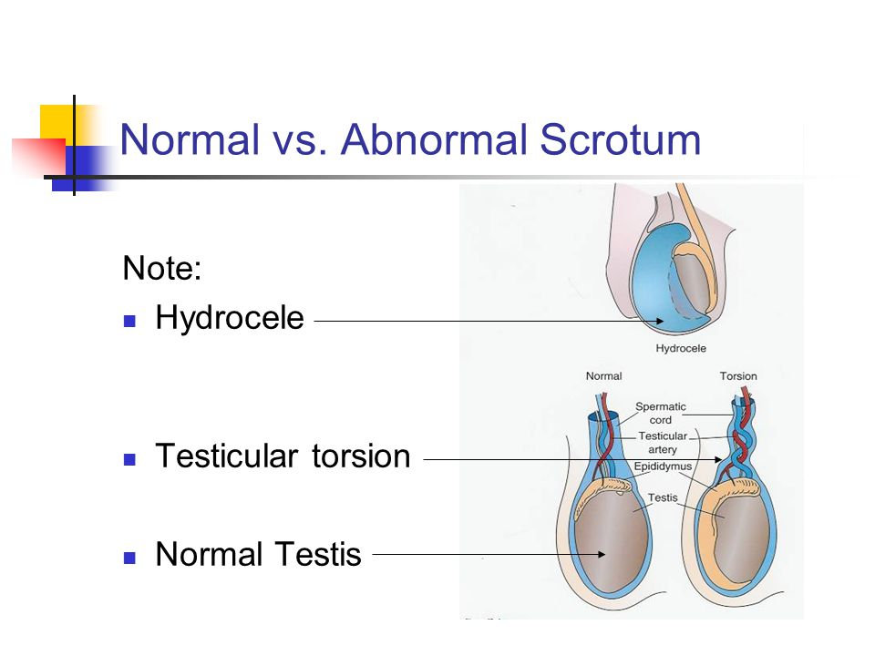 Normal vs. Abnormal Scrotum Note: Hydrocele Testicular torsion Normal Testis