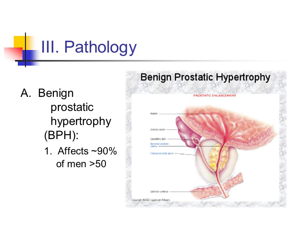 III. Pathology A. Benign prostatic hypertrophy (BPH): 1. Affects ~90% of men >50