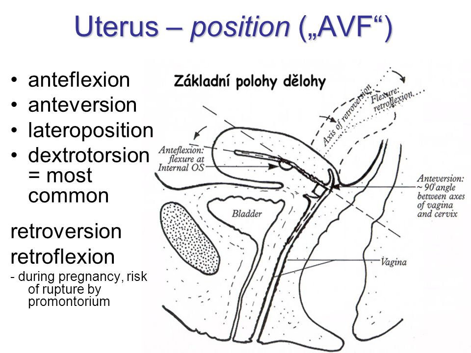 "Uterus – position (""AVF ) anteflexion anteversion lateroposition dextrotorsion = most common retroversion retroflexion - during pregnancy, risk of rupture by promontorium"