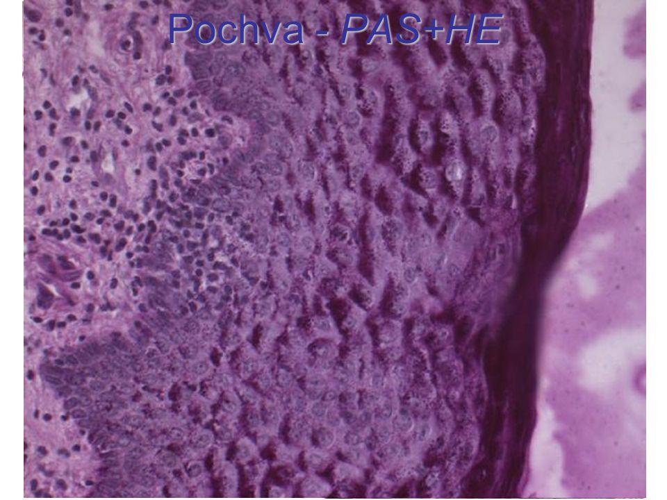 Pochva - PAS+HE