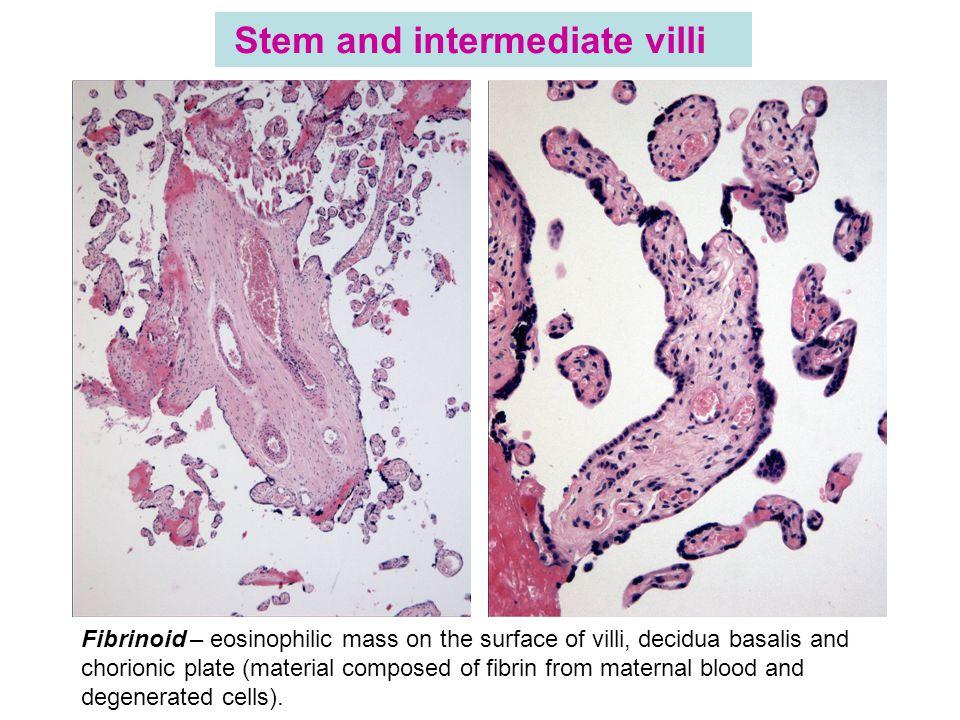 Stem and intermediate villi Fibrinoid – eosinophilic mass on the surface of villi, decidua basalis and chorionic plate (material composed of fibrin fr