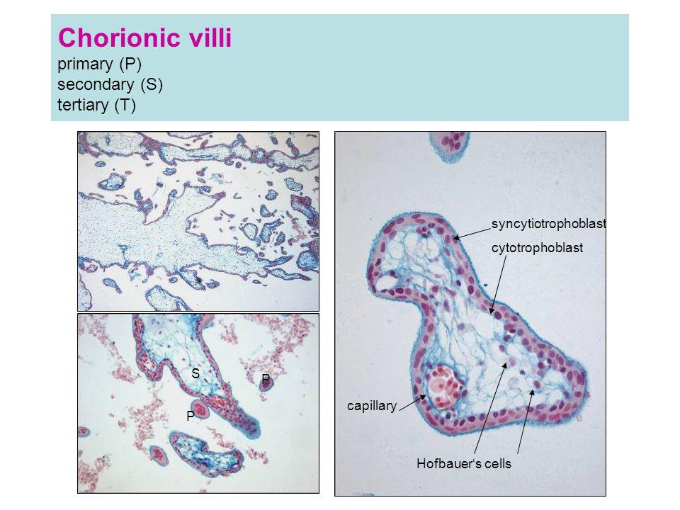 Chorionic villi primary (P) secondary (S) tertiary (T) P P S syncytiotrophoblast cytotrophoblast capillary Hofbauer's cells