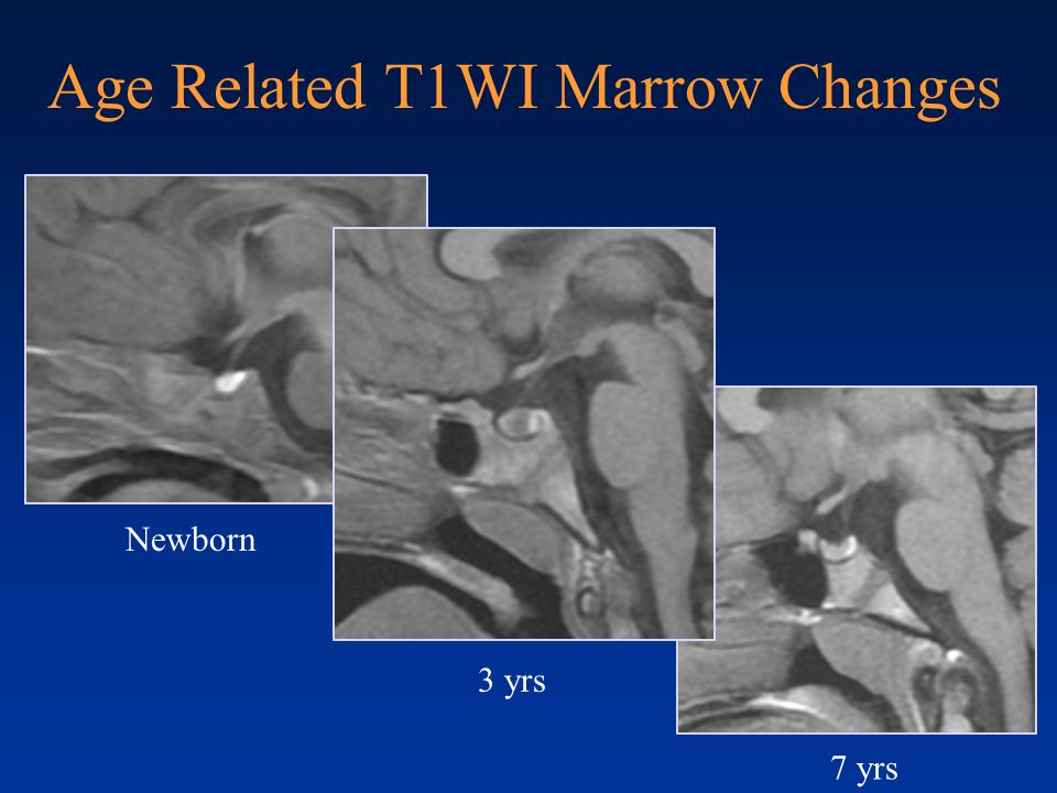 Age Related T1WI Marrow Changes Newborn 3 yrs 7 yrs