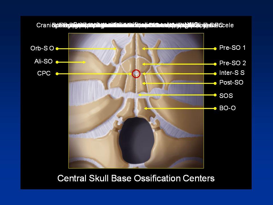 Craniopharyngeal Canal Courtesy Bronwyn E. Hamilton, MD