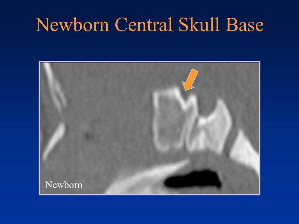 Sphenooccipital Synchondrosis NB 3 yrs 5 yrs