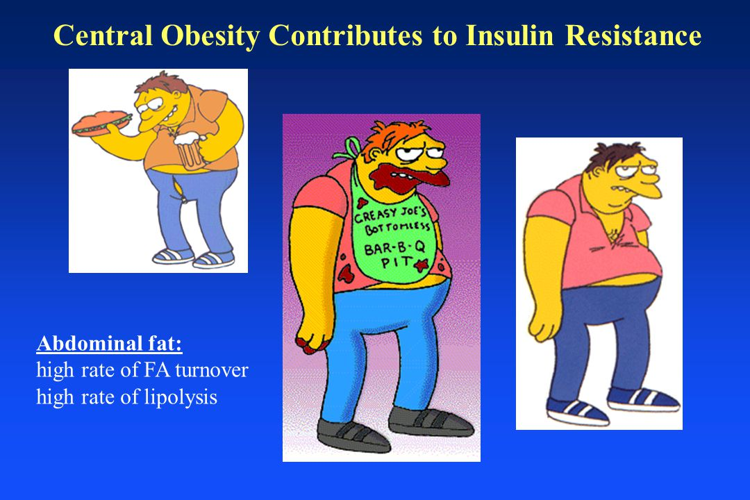 Central Obesity Contributes to Insulin Resistance Abdominal fat: high rate of FA turnover high rate of lipolysis