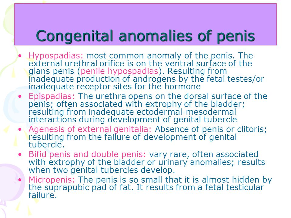 Hypospadias: most common anomaly of the penis. The external urethral orifice is on the ventral surface of the glans penis (penile hypospadias). Result