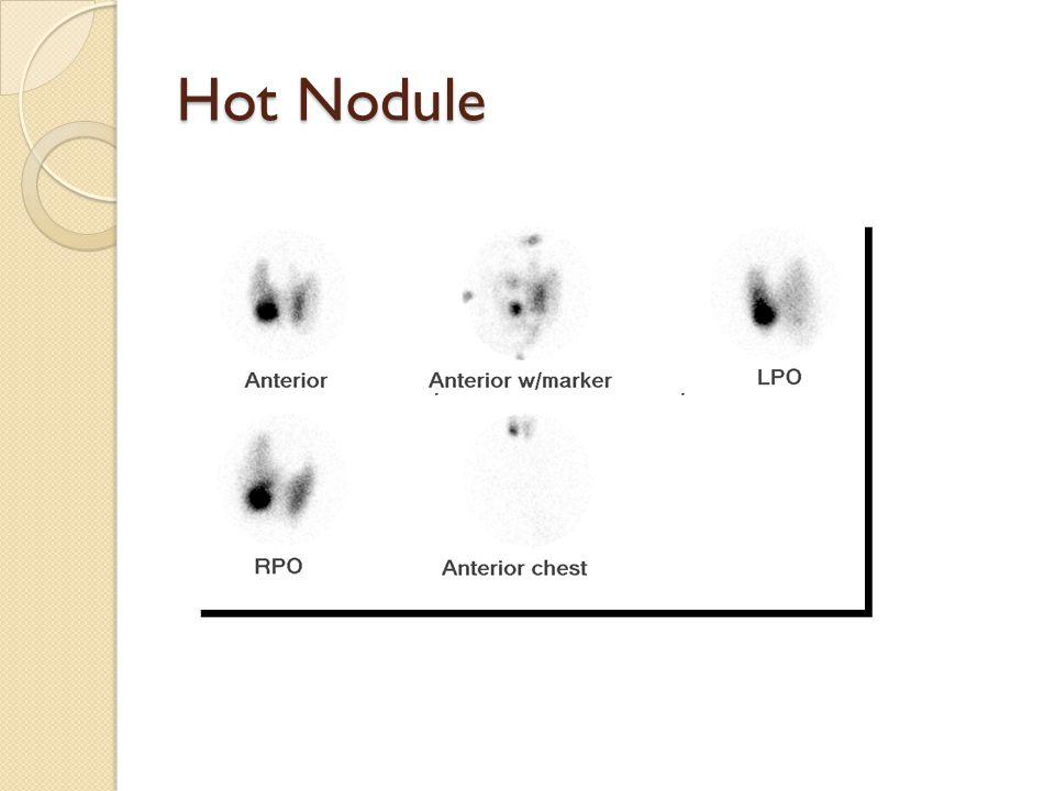 Toxic Nodule