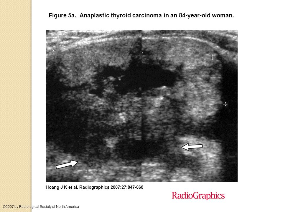 Local Invasion and Lymph Node Metastases US features that should arouse suspicion about lymph node metastases include a rounded bulging shape, increased size, replaced fatty hilum, irregular margins, heterogeneous echotexture, calcifications, cystic areas and vascularity throughout the lymph node instead of normal central hilar vessels at Doppler imaging