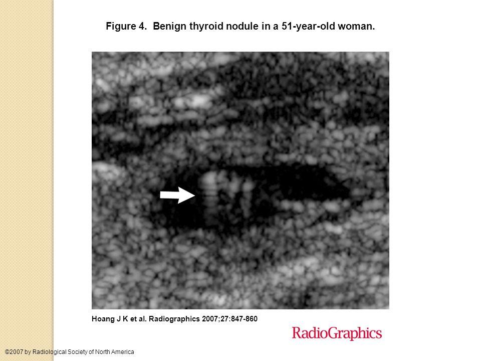 Punctate echogenicities in thyroid nodules.papillary carcinoma Frates M C et al.
